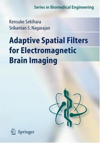 [Image: 171931210_adaptive_spatial_filters_for_e...maging.jpg]